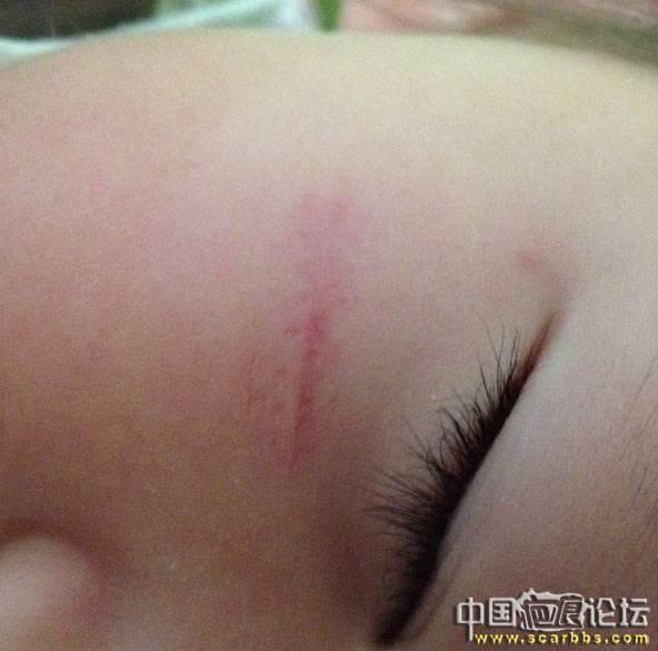 我的女宝摔倒磕伤右脸,缝了9针,2岁不到,已经下决心开始长期抗疤