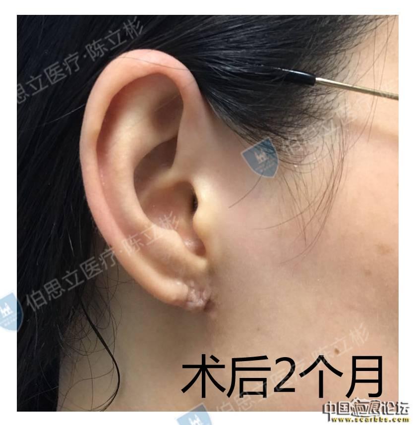 耳部疤痕疙瘩治疗术后2个月反馈 疤痕