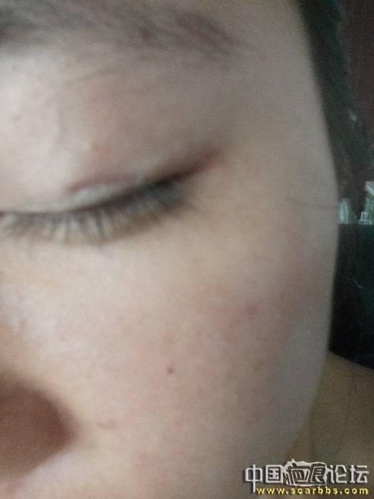 眼皮上麦粒肿留下的疤痕,求助杨大夫!