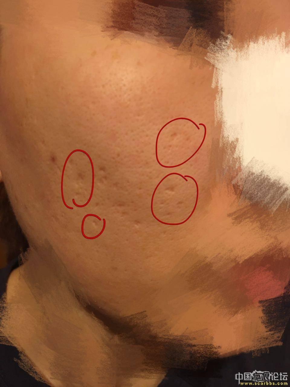 痘坑切除缝合实录70-疤痕体质图片_疤痕疙瘩图片-中国疤痕论坛