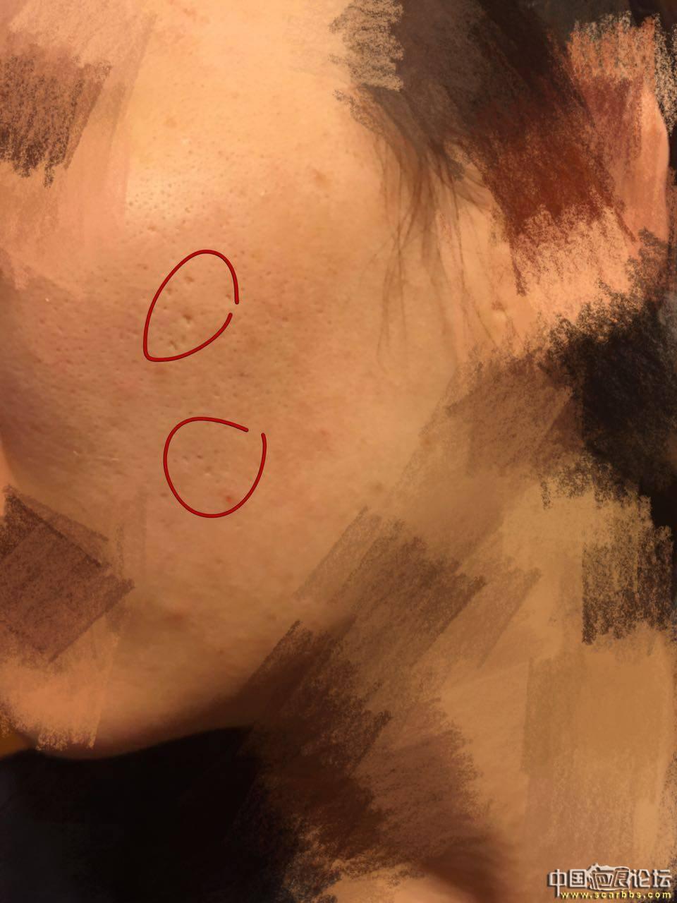 痘坑切除缝合实录90-疤痕体质图片_疤痕疙瘩图片-中国疤痕论坛