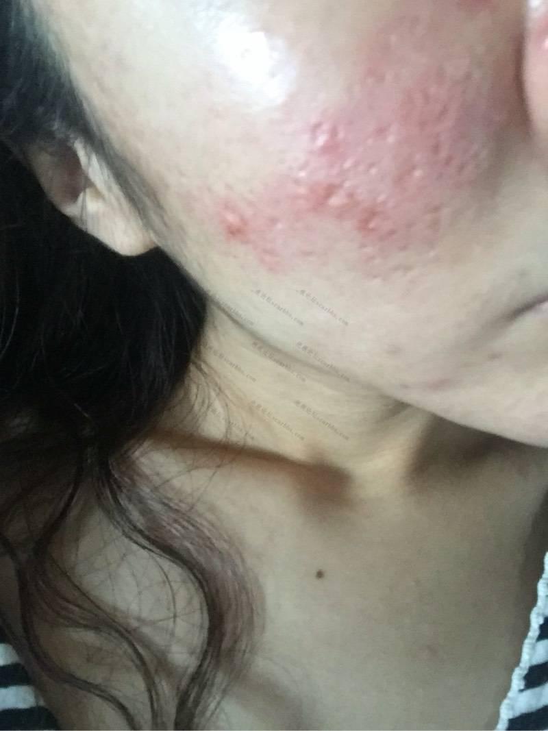 刚做的微针上图,给大家看看86-疤痕体质图片_疤痕疙瘩图片-中国疤痕论坛