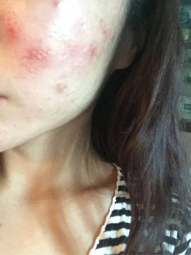 刚做的微针上图,给大家看看67-疤痕体质图片_疤痕疙瘩图片-中国疤痕论坛