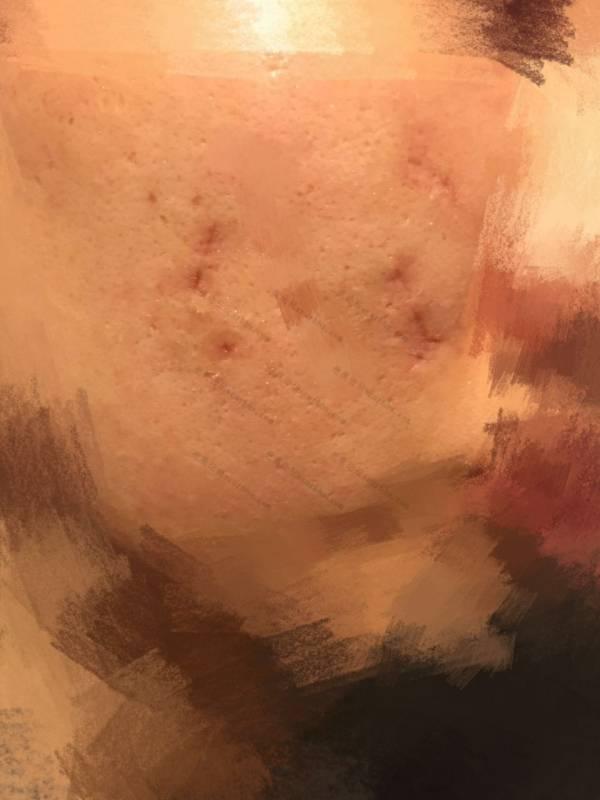 痘坑切除缝合实录20-疤痕体质图片_疤痕疙瘩图片-中国疤痕论坛