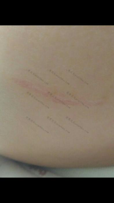 宝贝的小脸无端被抓成了2.5CM的凹疤66-疤痕体质图片_疤痕疙瘩图片-中国疤痕论坛