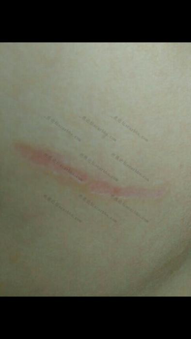 宝贝的小脸无端被抓成了2.5CM的凹疤70-疤痕体质图片_疤痕疙瘩图片-中国疤痕论坛