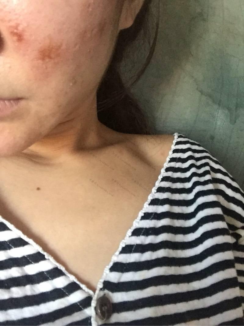刚做的微针上图,给大家看看0-疤痕体质图片_疤痕疙瘩图片-中国疤痕论坛