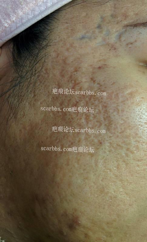 非常严重痘坑,还有得救吗?18-疤痕体质图片_疤痕疙瘩图片-中国疤痕论坛