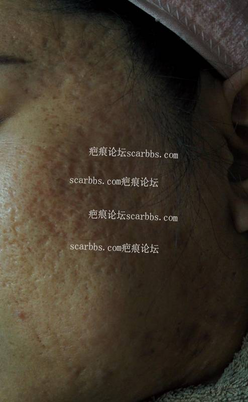非常严重痘坑,还有得救吗?43-疤痕体质图片_疤痕疙瘩图片-中国疤痕论坛