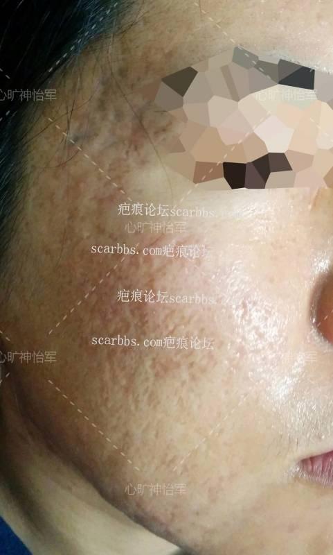 非常严重痘坑,还有得救吗?0-疤痕体质图片_疤痕疙瘩图片-中国疤痕论坛