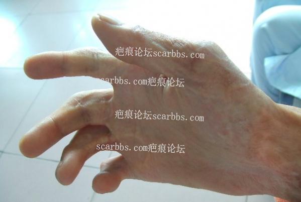 疤痕小知识——专业俗语篇25-疤痕体质图片_疤痕疙瘩图片-中国疤痕论坛