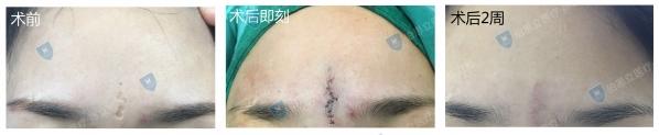 疤痕小知识——专业俗语篇14-疤痕体质图片_疤痕疙瘩图片-中国疤痕论坛