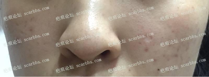 今天去三甲医院做了点痣凹坑疤痕切除缝合18-疤痕体质图片_疤痕疙瘩图片-中国疤痕论坛