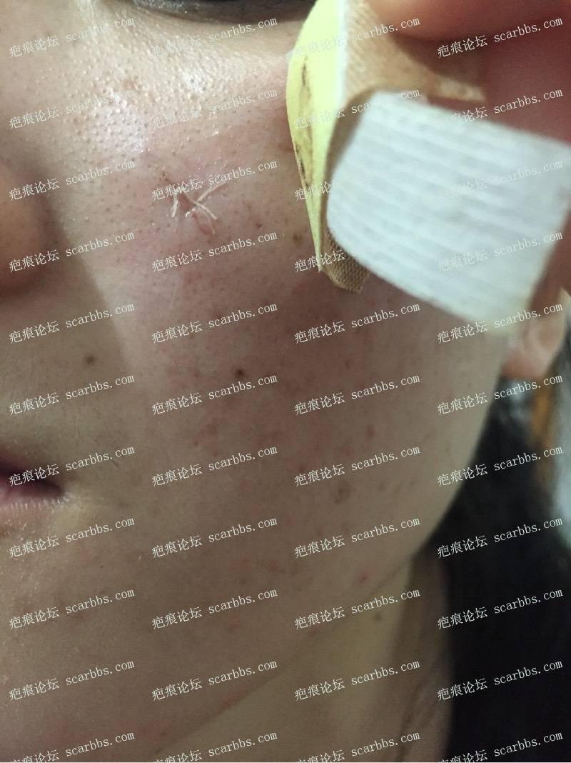 今天去三甲医院做了点痣凹坑疤痕切除缝合59-疤痕体质图片_疤痕疙瘩图片-中国疤痕论坛