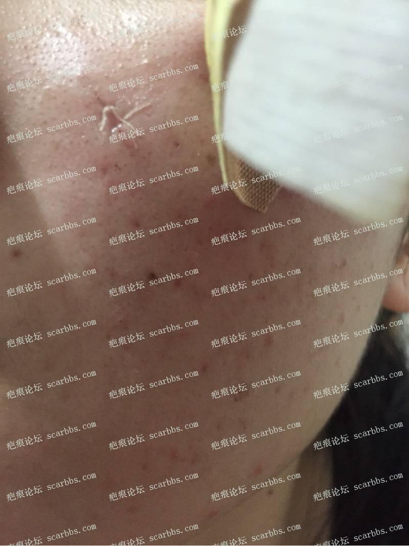 今天去三甲医院做了点痣凹坑疤痕切除缝合9-疤痕体质图片_疤痕疙瘩图片-中国疤痕论坛