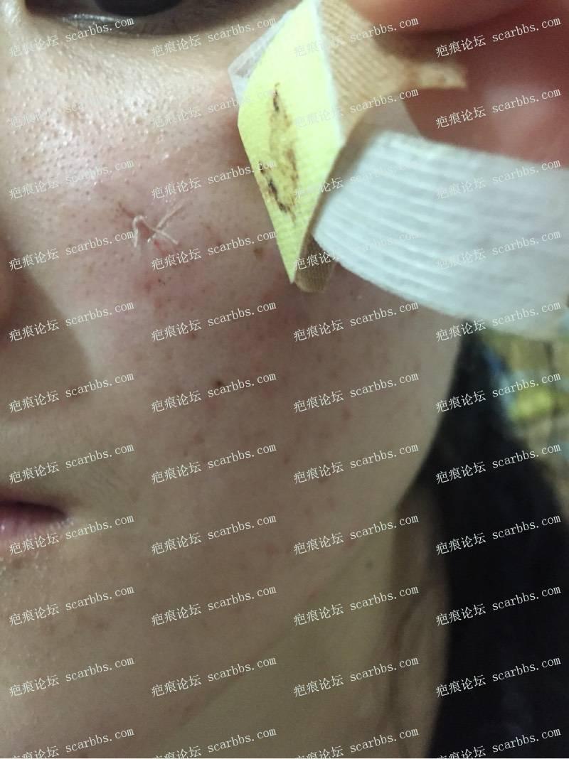 今天去三甲医院做了点痣凹坑疤痕切除缝合 点痣,凹陷疤痕,切缝,