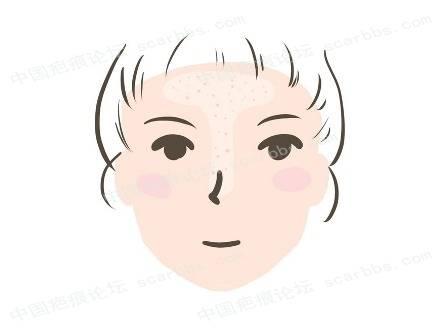 我有粉刺和毛孔粗大,应该怎么办?98-疤痕体质图片_疤痕疙瘩图片-中国疤痕论坛