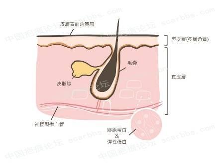 我有粉刺和毛孔粗大,应该怎么办?81-疤痕体质图片_疤痕疙瘩图片-中国疤痕论坛