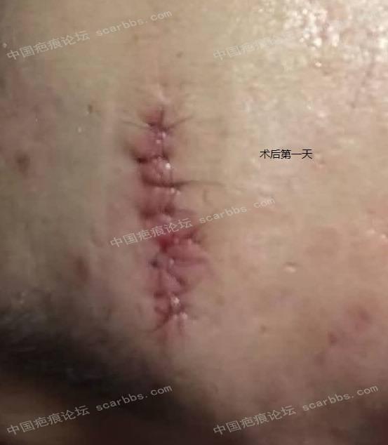 额头第二次W改型切缝,效果期待中,持续更新94-疤痕体质图片_疤痕疙瘩图片-中国疤痕论坛