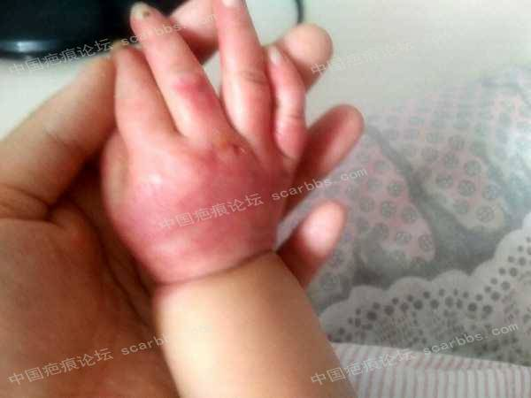 宝宝手指手背烫伤,抗疤26天,坚持下去!7-疤痕体质图片_疤痕疙瘩图片-中国疤痕论坛