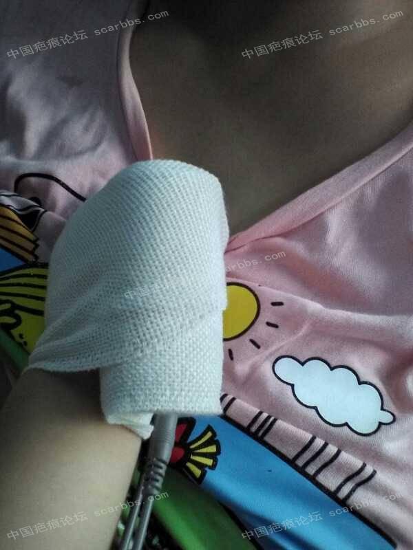 宝宝手指手背烫伤,抗疤26天,坚持下去!38-疤痕体质图片_疤痕疙瘩图片-中国疤痕论坛