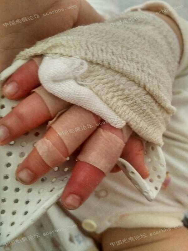 宝宝手指手背烫伤,抗疤26天,坚持下去!11-疤痕体质图片_疤痕疙瘩图片-中国疤痕论坛