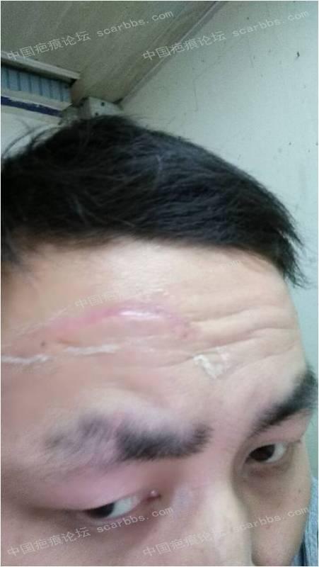 疤痕平的使用方法和效果 疤痕