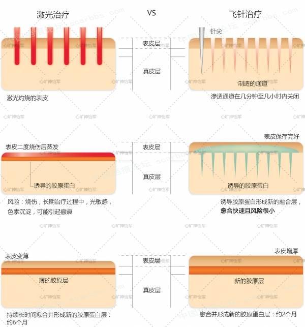 简单说下痘坑和痘坑的类型,如何用微针来改善