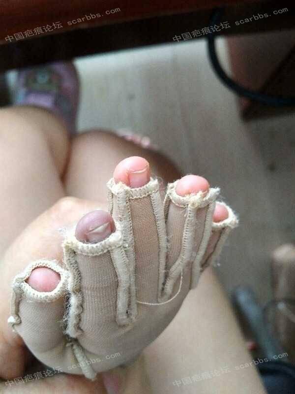 宝宝手指手背烫伤,抗疤26天,坚持下去!16-疤痕体质图片_疤痕疙瘩图片-中国疤痕论坛