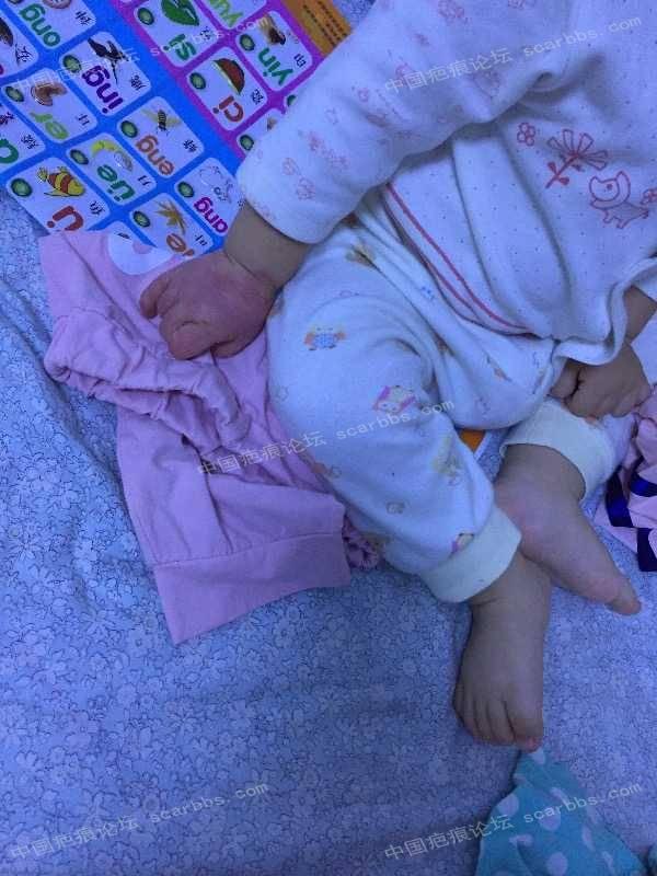 宝宝手指手背烫伤,抗疤26天,坚持下去!95-疤痕体质图片_疤痕疙瘩图片-中国疤痕论坛