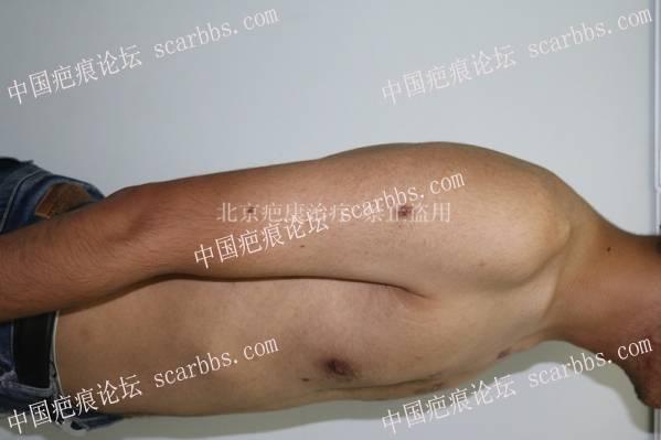 腮部疤痕疙瘩在疤康的第二次治疗26-疤痕体质图片_疤痕疙瘩图片-中国疤痕论坛