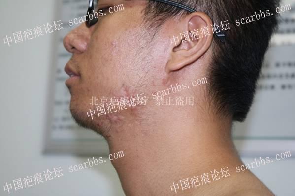 腮部疤痕疙瘩在疤康的第二次治疗61-疤痕体质图片_疤痕疙瘩图片-中国疤痕论坛