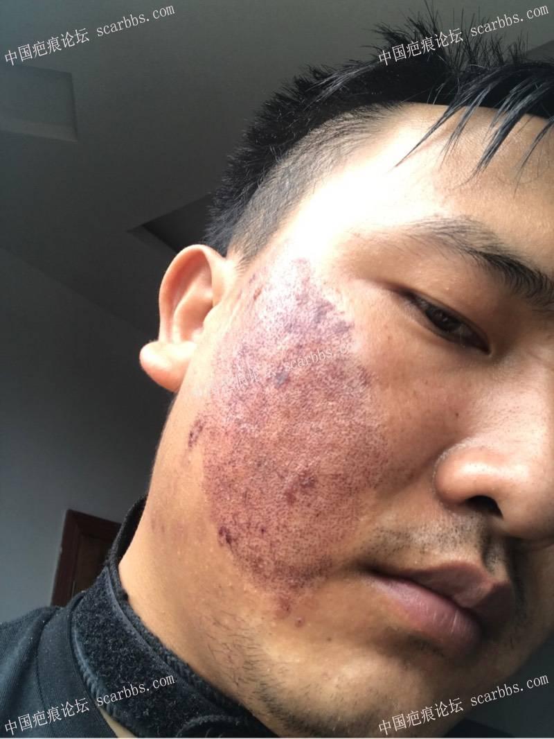 20年的陈旧疤痕,目前飞顿离子束手术治疗中,期待好效果!16-疤痕体质图片_疤痕疙瘩图片-中国疤痕论坛