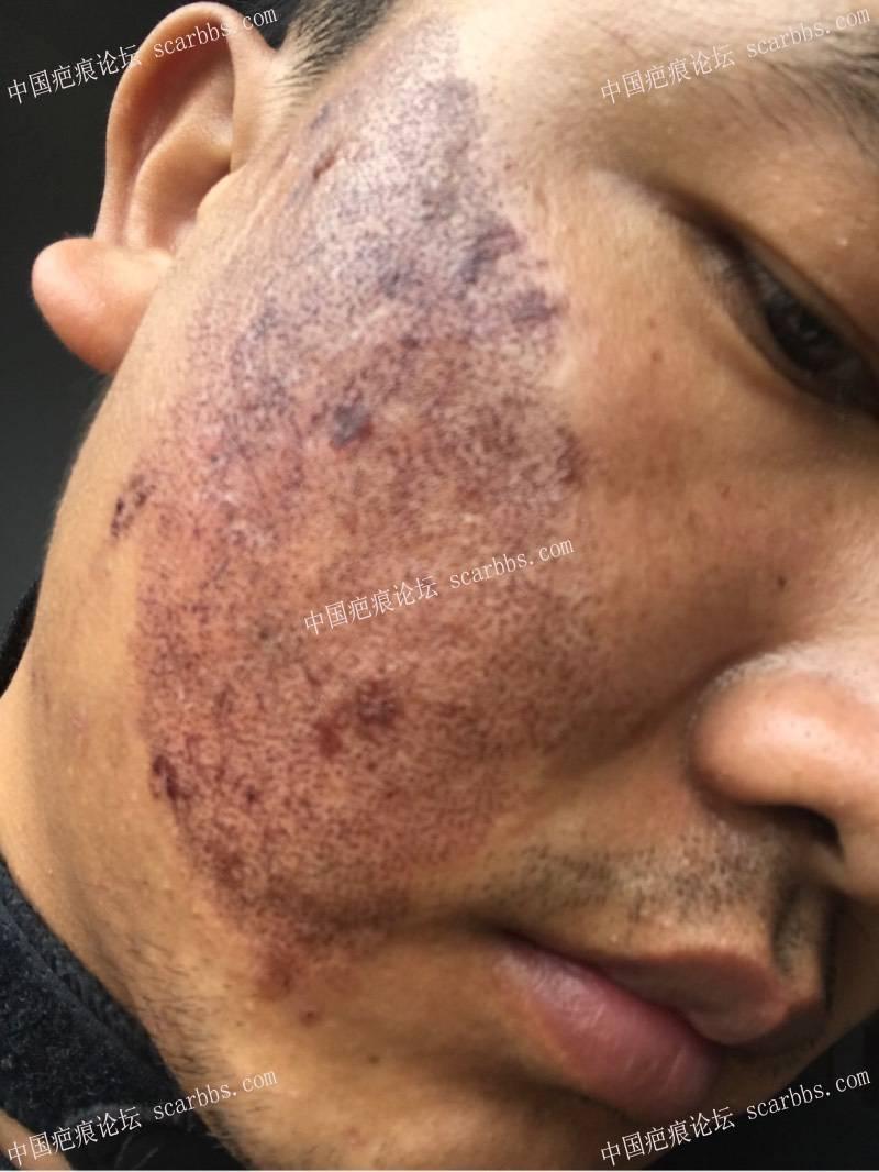 20年的陈旧疤痕,目前飞顿离子束手术治疗中,期待好效果!14-疤痕体质图片_疤痕疙瘩图片-中国疤痕论坛