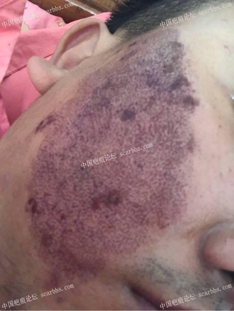 20年的陈旧疤痕,目前飞顿离子束手术治疗中,期待好效果!43-疤痕体质图片_疤痕疙瘩图片-中国疤痕论坛