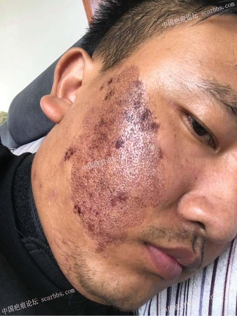 20年的陈旧疤痕,目前飞顿离子束手术治疗中,期待好效果!57-疤痕体质图片_疤痕疙瘩图片-中国疤痕论坛