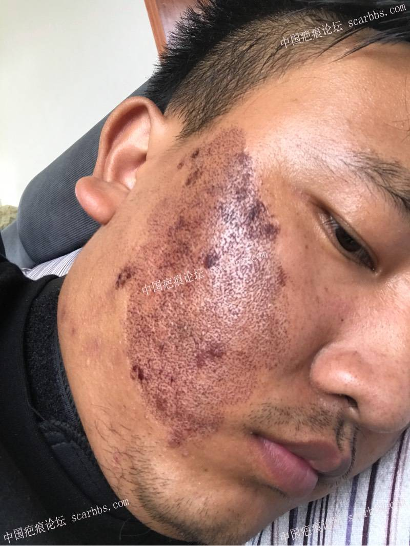 20年的陈旧疤痕,目前飞顿离子束手术治疗中,期待好效果!32-疤痕体质图片_疤痕疙瘩图片-中国疤痕论坛