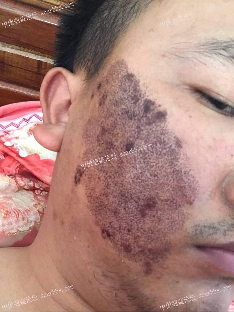 20年的陈旧疤痕,目前飞顿离子束手术治疗中,期待好效果!51-疤痕体质图片_疤痕疙瘩图片-中国疤痕论坛