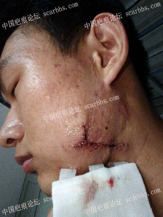 两腮痤疮增生性疤痕在上海九院做了手术99-疤痕体质图片_疤痕疙瘩图片-中国疤痕论坛