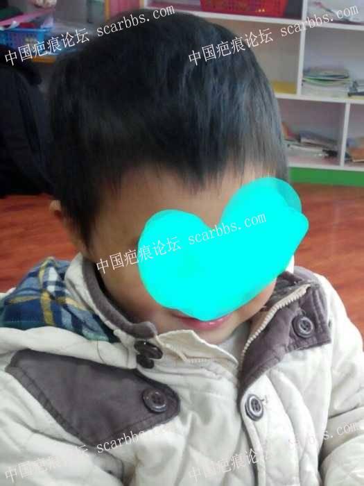 【儿童疤痕护理心得】妈妈的爱,是最好的疤痕药---疤痕半年变平变软90-疤痕体质图片_疤痕疙瘩图片-中国疤痕论坛
