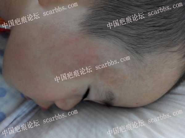 【儿童疤痕护理心得】妈妈的爱,是最好的疤痕药---疤痕半年变平变软97-疤痕体质图片_疤痕疙瘩图片-中国疤痕论坛