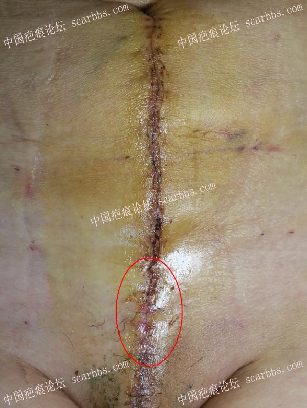 一例严重剖腹产疤痕的手术治疗(术后未放疗)