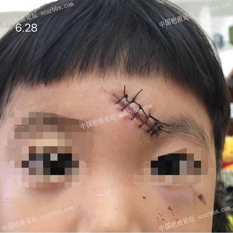 孩子额头受伤,凹疤恢复过程。共勉!!