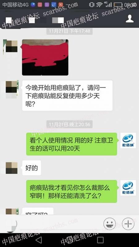 剖腹产疤痕修复十六天效果惊人!41-疤痕体质图片_疤痕疙瘩图片-中国疤痕论坛