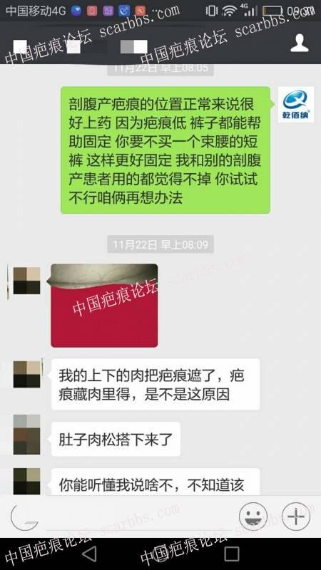 剖腹产疤痕修复十六天效果惊人!48-疤痕体质图片_疤痕疙瘩图片-中国疤痕论坛