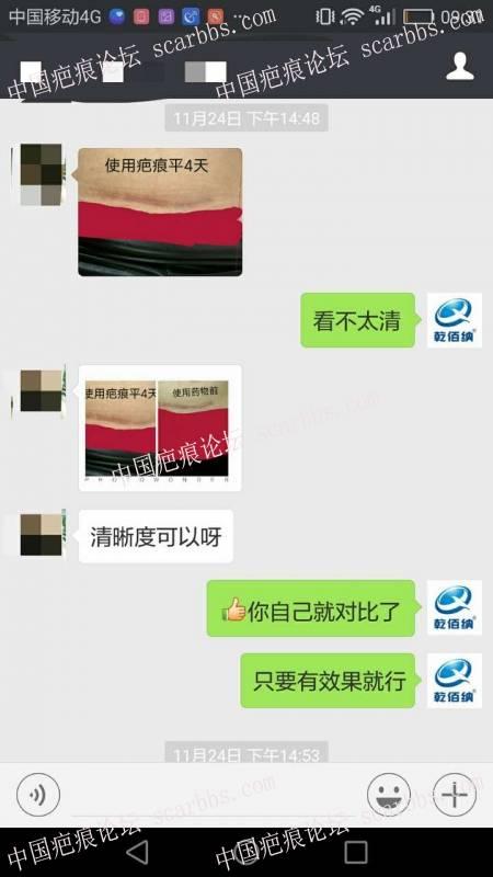 剖腹产疤痕修复十六天效果惊人!50-疤痕体质图片_疤痕疙瘩图片-中国疤痕论坛