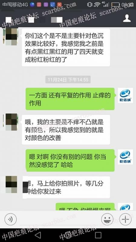剖腹产疤痕修复十六天效果惊人!9-疤痕体质图片_疤痕疙瘩图片-中国疤痕论坛