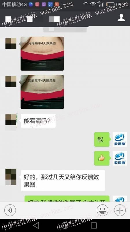 剖腹产疤痕修复十六天效果惊人!1-疤痕体质图片_疤痕疙瘩图片-中国疤痕论坛
