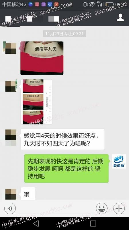 剖腹产疤痕修复十六天效果惊人!99-疤痕体质图片_疤痕疙瘩图片-中国疤痕论坛