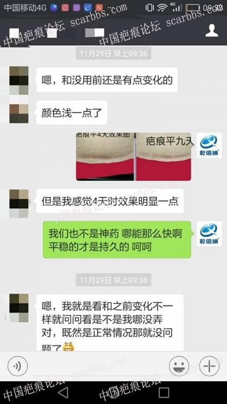 剖腹产疤痕修复十六天效果惊人!2-疤痕体质图片_疤痕疙瘩图片-中国疤痕论坛